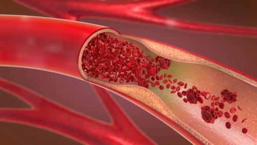 Por que ocorre o excesso de colesterol no nosso organismo?